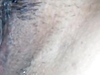 Formas de vagina - Depilada de la vagina
