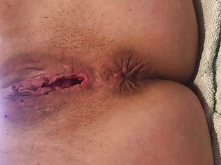 Needle breast biopsy preparation - Needle pussy torture slave bitch tears