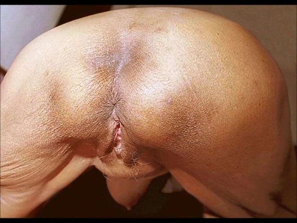 Featured Years Old Granny Ass Fuck Asshole Closeup Porn Pics Xhamster