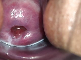Camera films cervix during orgasm Fertile cervix