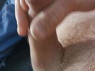 Beschnittener aus wie sieht ein penis Penis des