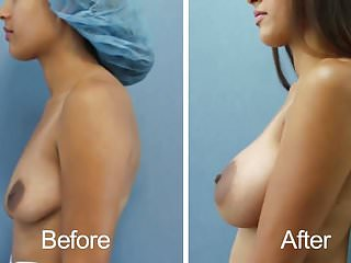 Breast augmentation after surgery - Dual plane breast b4 and after