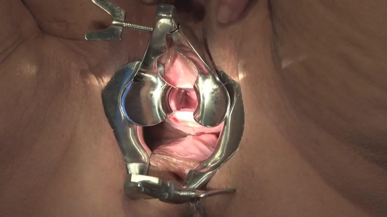 Pdf Management Of Urethrovaginal Fistulas
