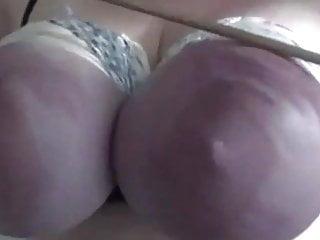 Vaginal bleeding and bruising Bruised titties