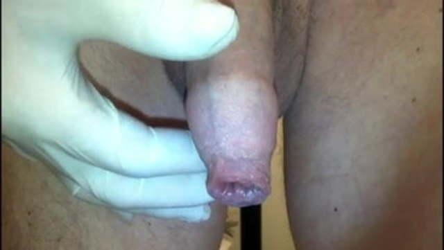 Zurückgezogen vorhaut Penisvorhaut