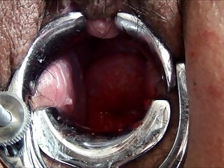 Adult advanced video - Advanced cervix play