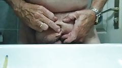 udo 333 Urethra dehnen an penectomy
