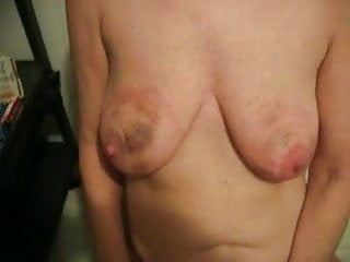 Breast bruise with lump Slave showing off bruised tits and ass