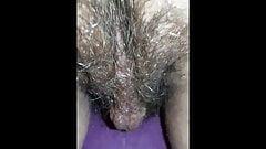 Hairy Zoom