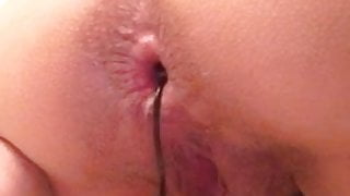 amateur anal bead removal
