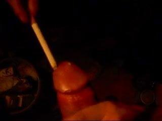 Burning on penis tip - Cigarette burn penis