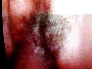 Vaginal fluid cause bumps on skin Nice wet pussy fluids