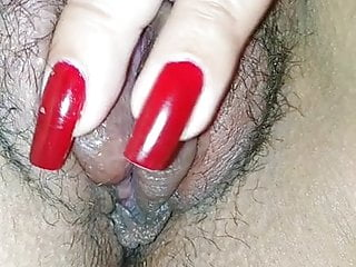 Yaz breast swelling Vaginal swelling