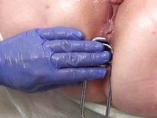 Gay doctors examination - Stretching her ass and pussy on doctors examination chair