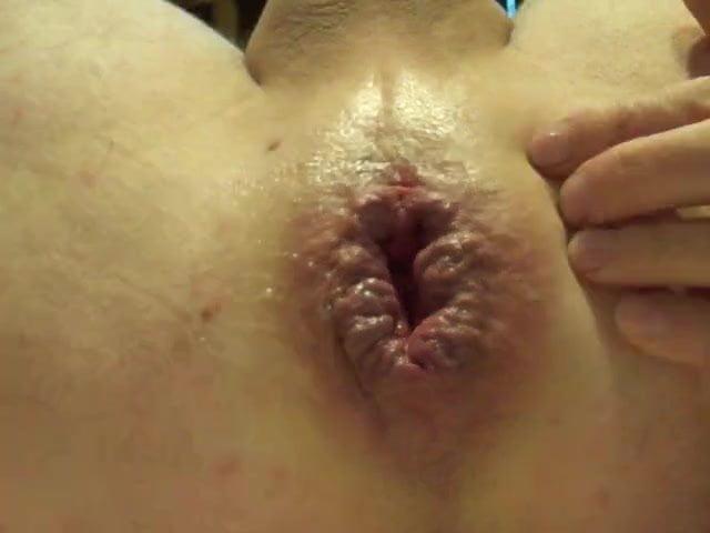 Swollen Asshole Porn