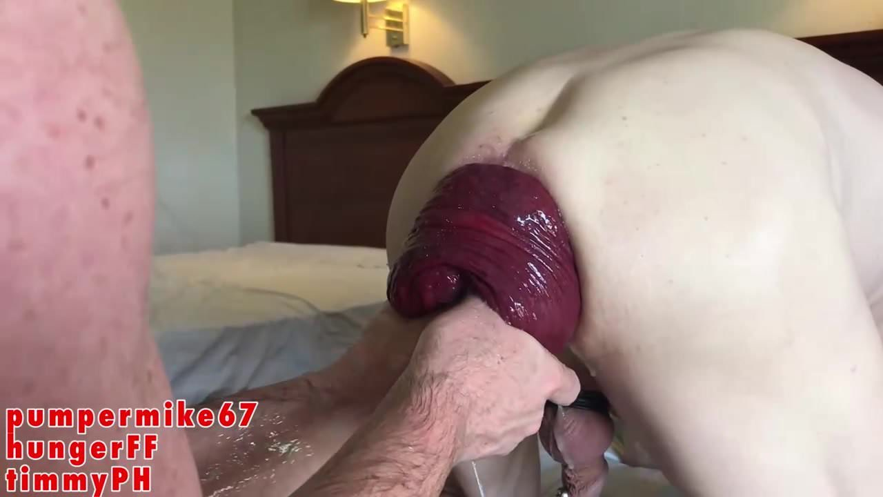 Ass Anal Hole First Fight Porn chariot fisting 2huge prolapsed hole.