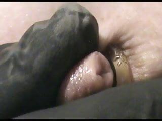Dog anal gland discharge - Extreme dog-anal part2