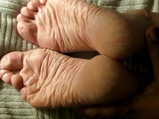 Foot bottom dry and cracking - Lyns debut - dry wrinkly soles
