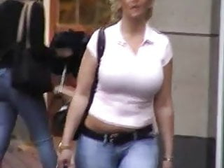 Hematoma of breast Best of breast - busty candid 11