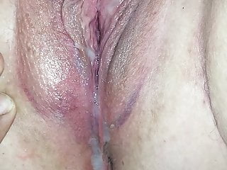 Facial bruising - Bruised pussy creampied. i beat it up