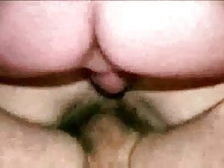 Vaginal aphthous ulcer - Cumpliation of double vaginals