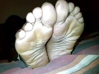 Dark spots on bottom of feet Dark chocolate feet