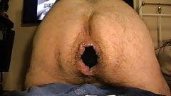 XL anal plug lost in my ass ... der verschwundene Plug