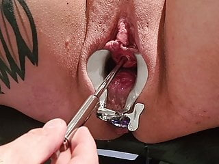 Crazyfetishcouple Hot Piss Session On The Gyno Chair XhpJZ