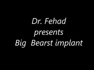 Breast implants in b c Dr. fehad presents big breast implant