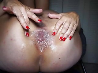 Bound anal insertion Amateur couple prolapse and anal insertion
